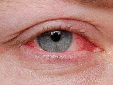 herpes virüsü gözü de tehdit ediyor